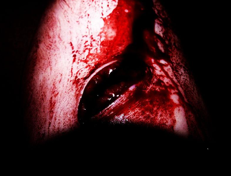 rupturing wound - self-portrait by Eleanor Leonne Bennett